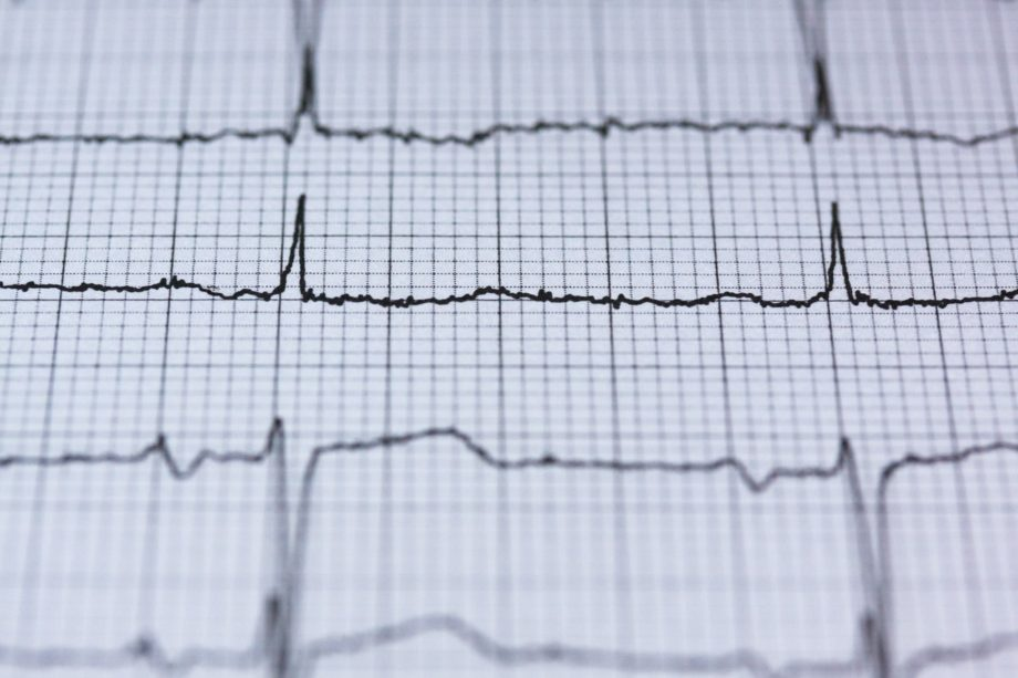 Heart health tips: the essential guide